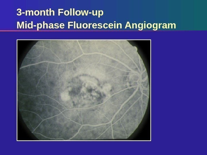 3 -month Follow-up Mid-phase Fluorescein Angiogram