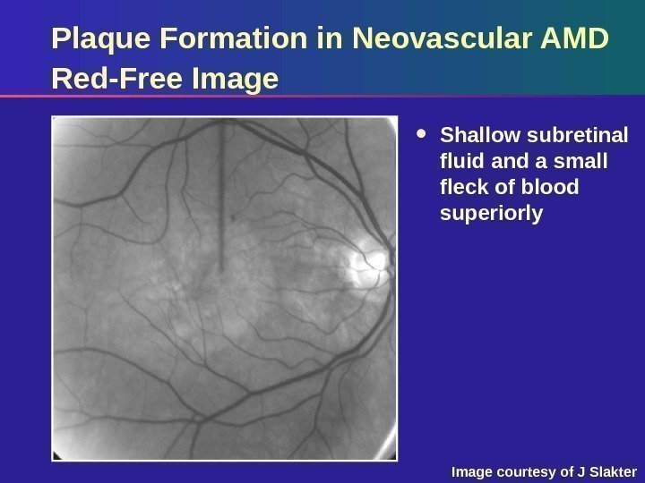 Plaque Formation in Neovascular AMD Red-Free Image Shallow subretinal fluid and a small fleck