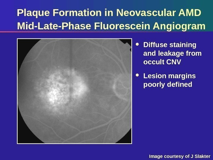 Plaque Formation in Neovascular AMD Mid-Late-Phase Fluorescein Angiogram Diffuse staining and leakage from occult