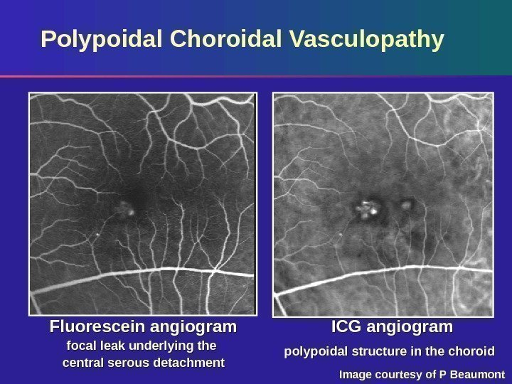 Polypoidal Choroidal Vasculopathy Fluorescein angiogram focal leak underlying the central serous detachment ICG angiogram