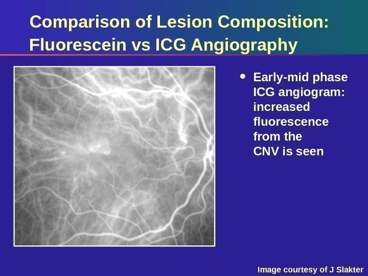 Comparison of Lesion Composition:  Fluorescein vs ICG Angiography Early-mid phase ICG angiogram: