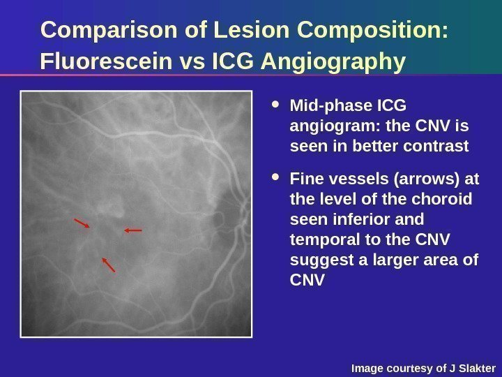 Comparison of Lesion Composition:  Fluorescein vs ICG Angiography Mid-phase ICG angiogram: the CNV