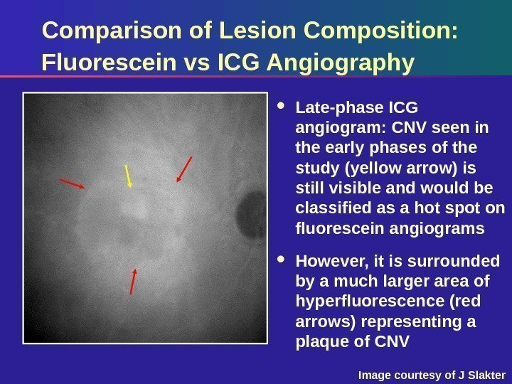 Comparison of Lesion Composition:  Fluorescein vs ICG Angiography Late-phase ICG angiogram: CNV seen