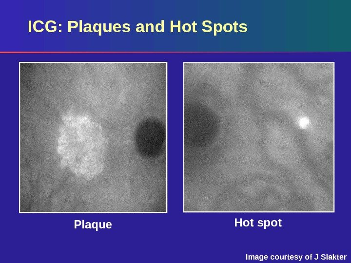 Hot spot Plaque. ICG: Plaques and Hot Spots Image courtesy of J Slakter