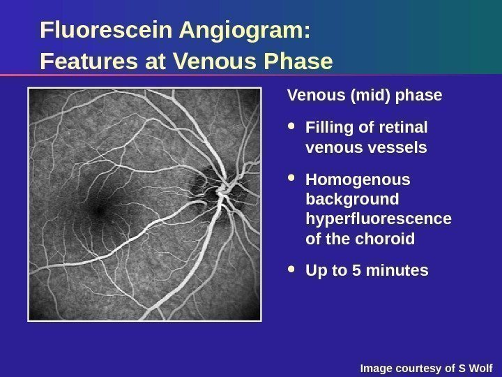 Fluorescein Angiogram:  Features at Venous Phase Venous (mid) phase Filling of retinal venous
