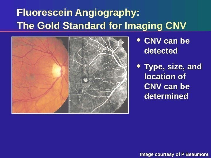 Fluorescein Angiography: The Gold Standard for Imaging CNV can be detected  Type, size,