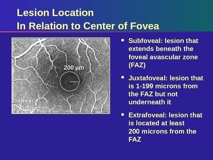 Lesion Location In Relation to Center of Fovea Subfoveal:  lesion that extends beneath