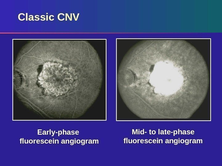 Classic CNV Early-phase fluorescein angiogram Mid- to late-phase fluorescein angiogram