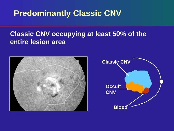 Predominantly Classic CNV occupying at least 50 of the entire lesion area Occult CNV