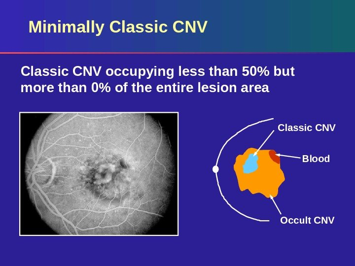 Minimally Classic CNV occupying less than 50 but more than 0 of the entire