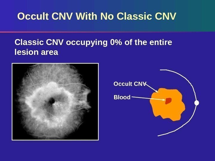 Occult CNV With No Classic CNV occupying 0 of the entire lesion area Occult