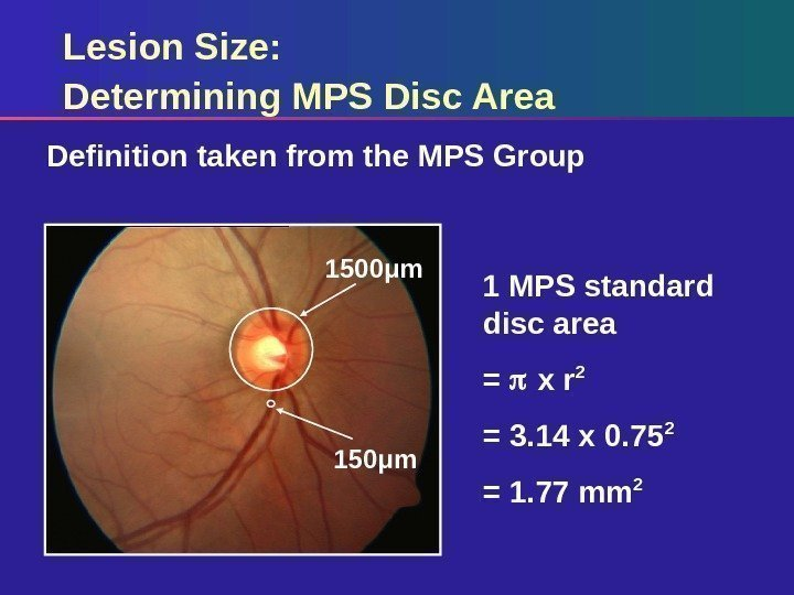 Lesion Size: Determining MPS Disc Area Definition taken from the MPS Group 1 MPS