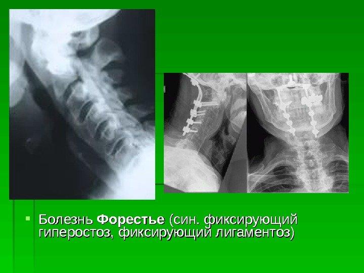 Лигаментоз грудного отдела позвоночника лечение