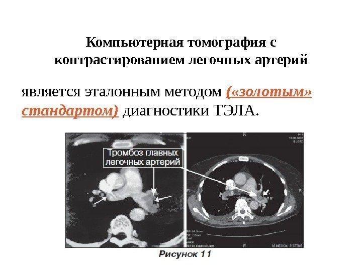 Компьютерная томография без контрастирования