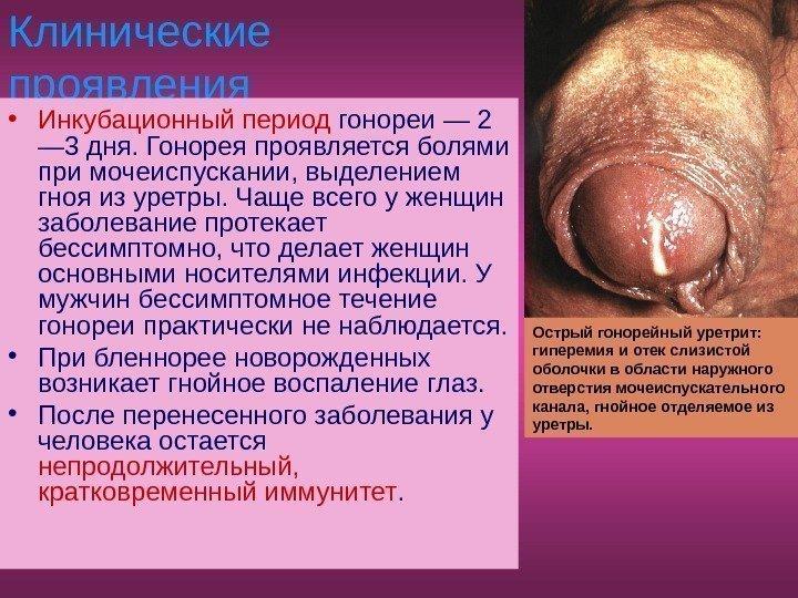 чем можно заразиться через оральный секс кольпитом или молочницей
