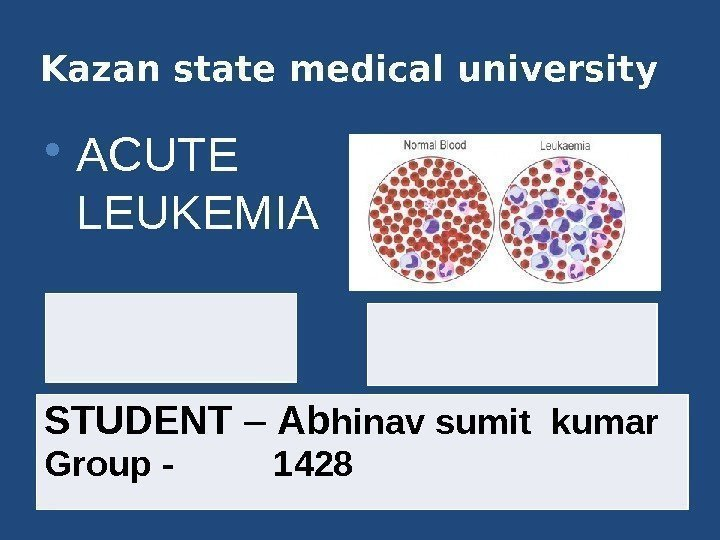 Kazan state medical university 1. Acute lymphocytic  leukemia ( ALL ) 2. Acute