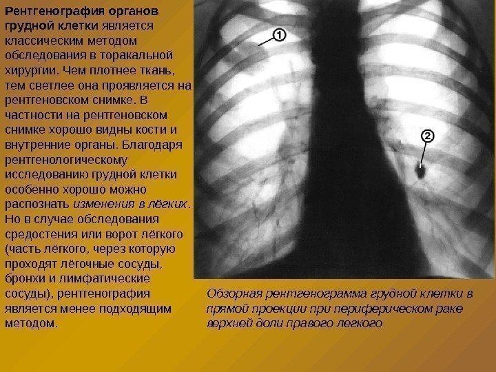 термобелье рентгенография органов грудной клетки в выходной в новосибирске улучшения
