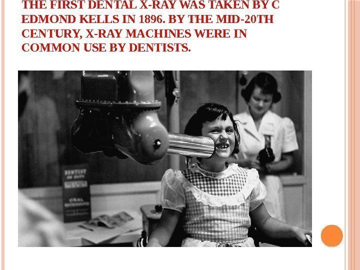 THE FIRST DENTAL X-RAY WAS TAKEN BY C EDMOND KELLS IN 1896. BY THE