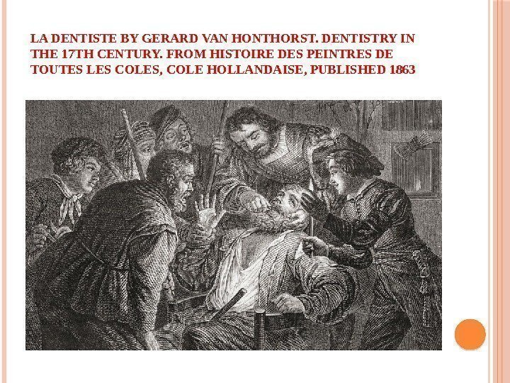 LA DENTISTE BY GERARD VAN HONTHORST. DENTISTRY IN THE 17 TH CENTURY. FROM HISTOIRE