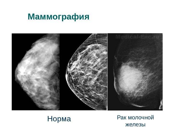Узи или рентген молочных желез что лучше