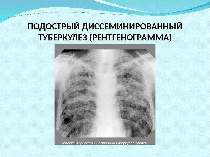 Туберкулез легких рентгенограмма