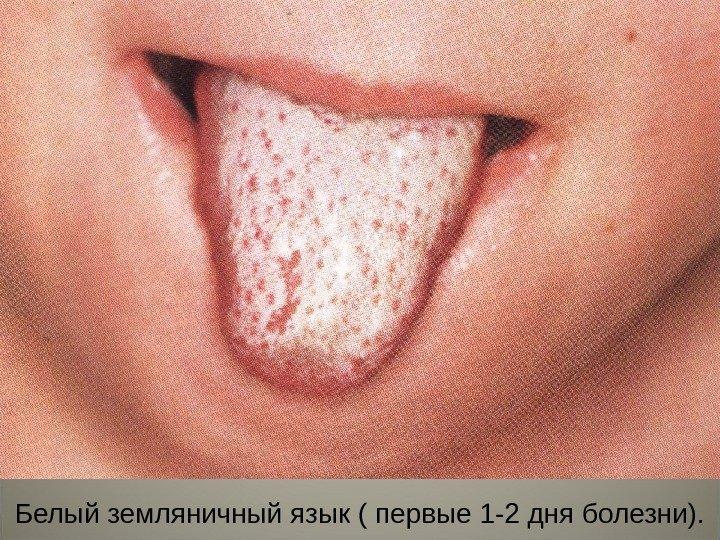 аллергия сыпь на шее