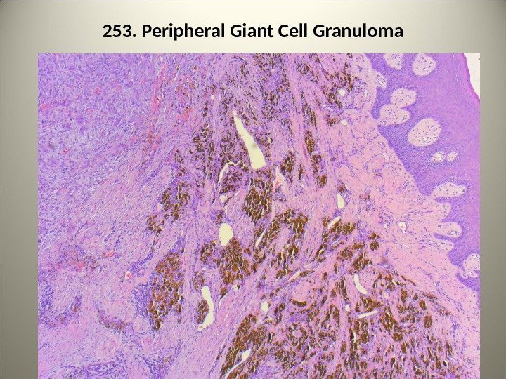 253. Peripheral Giant Cell Granuloma 91