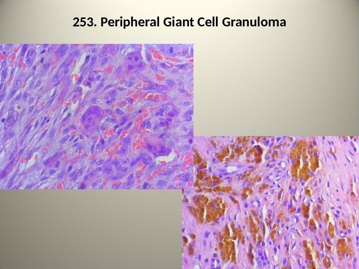 253. Peripheral Giant Cell Granuloma 92