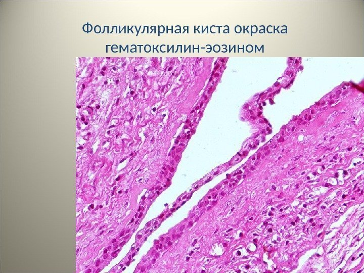 фолликулярная киста с кровоизлиянием фото