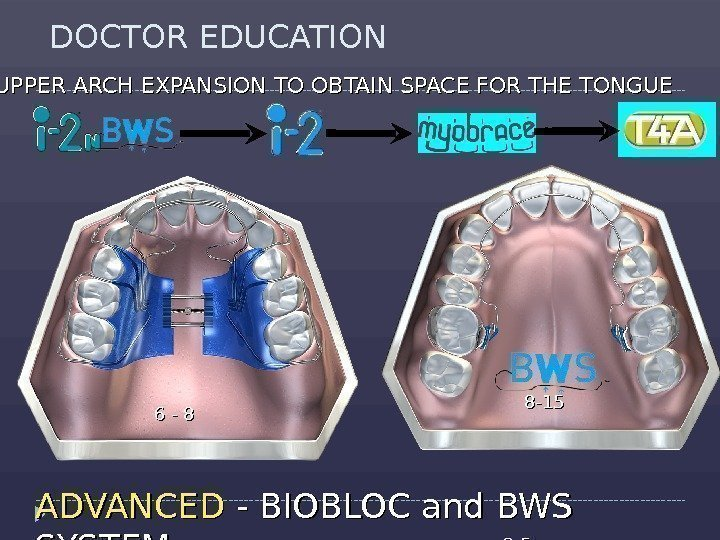 DOCTOR EDUCATION ADVANCED - BIOBLOC and BWS SYSTEM 2 -52 -5 UPPER ARCH EXPANSION
