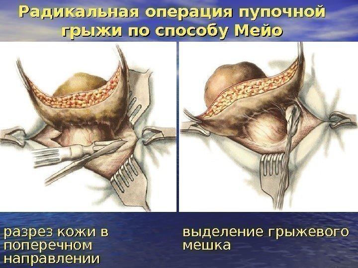 грыжа пупочная операция архангельск
