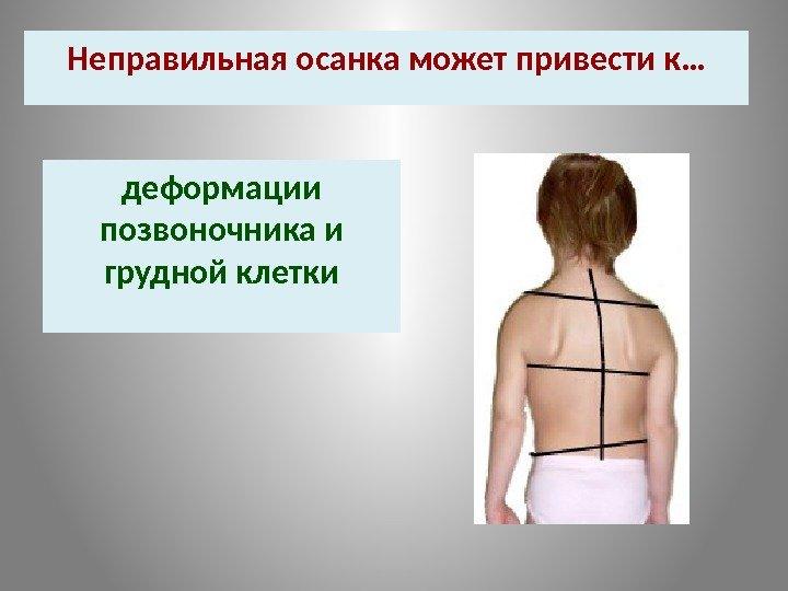 К чему может привести грудной остеохондроз