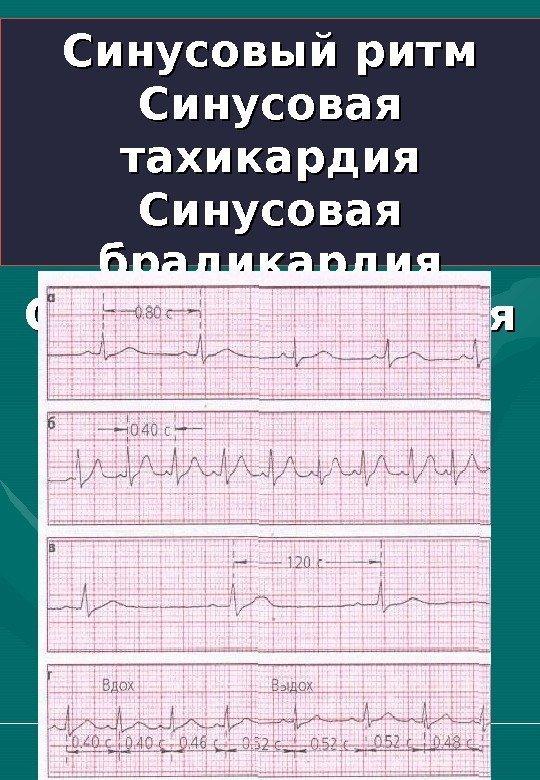 Синусовый ритм сердца норма у беременных 18