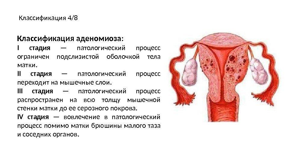 Аденомиоз матки диффузный и узловой симптомы и признаки
