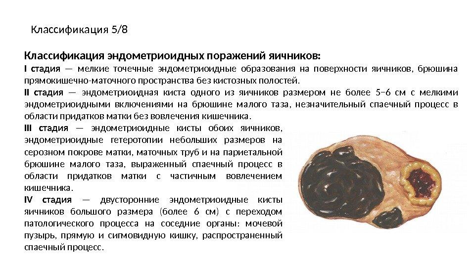 Эндометриоз Презентацию подготовил: Усиченко Кирилл Алексеевич