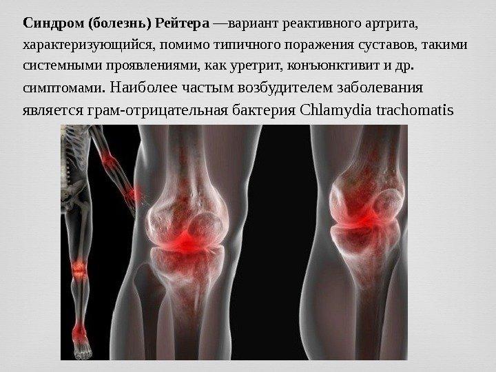 Заболевания суставов из за венерических заболеваний. Инфекционный артрит - бактерии и вирусы способны поражать суставы