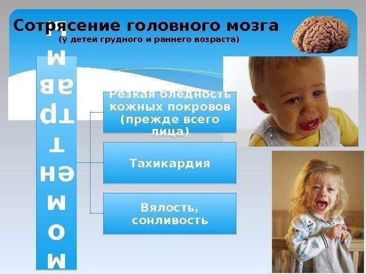 Когда проявляются признаки сотрясения мозга у ребенка