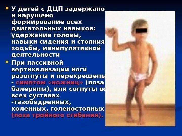 dtsp-narusheniya-oporno-dvigatelnogo-apparata