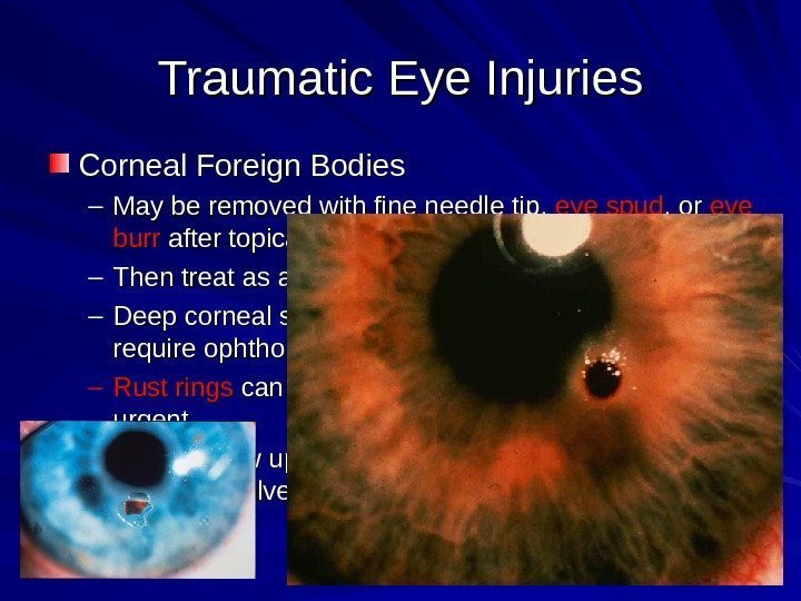 Traumatic Eye Injuries Corneal Foreign Bodies – May be removed with fine needle tip,