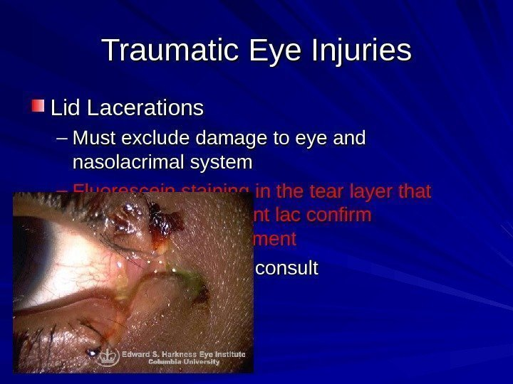 Traumatic Eye Injuries Lid Lacerations – Must exclude damage to eye and nasolacrimal system