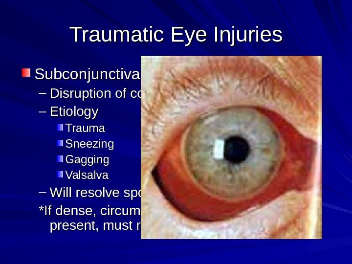 Traumatic Eye Injuries Subconjunctival Hemorrhage – Disruption of conjunctival blood vessel – Etiology Trauma