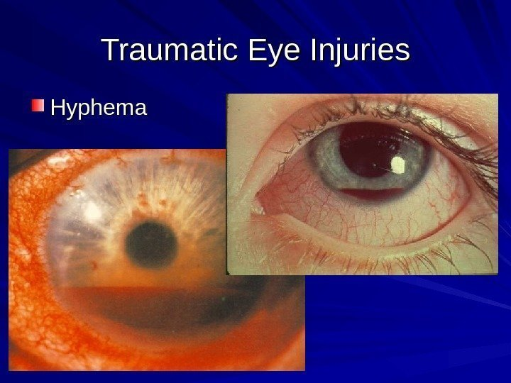 Traumatic Eye Injuries Hyphema