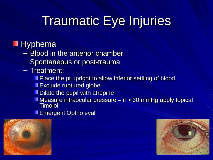 Traumatic Eye Injuries Hyphema – Blood in the anterior chamber – Spontaneous or post-trauma