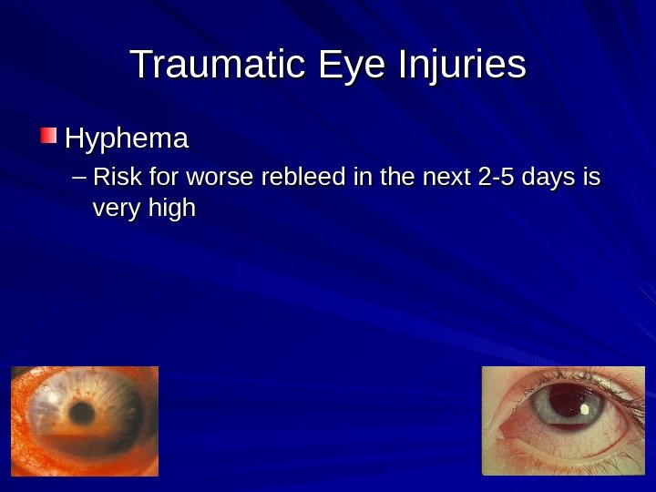 Traumatic Eye Injuries Hyphema – Risk for worse rebleed in the next 2 -5