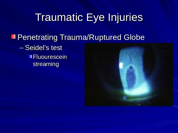 Traumatic Eye Injuries Penetrating Trauma/Ruptured Globe – Seidel's test Fluourescein streaming
