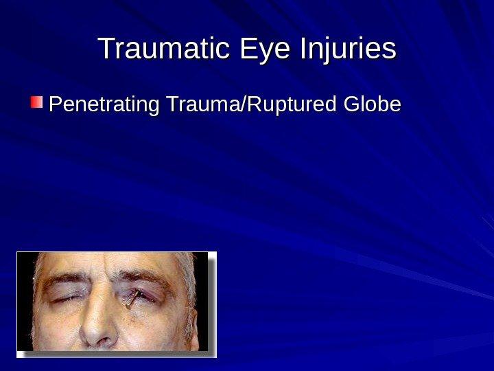 ruptured globe symptoms