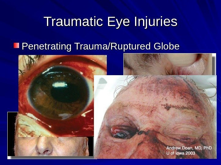 Traumatic Eye Injuries Penetrating Trauma/Ruptured Globe