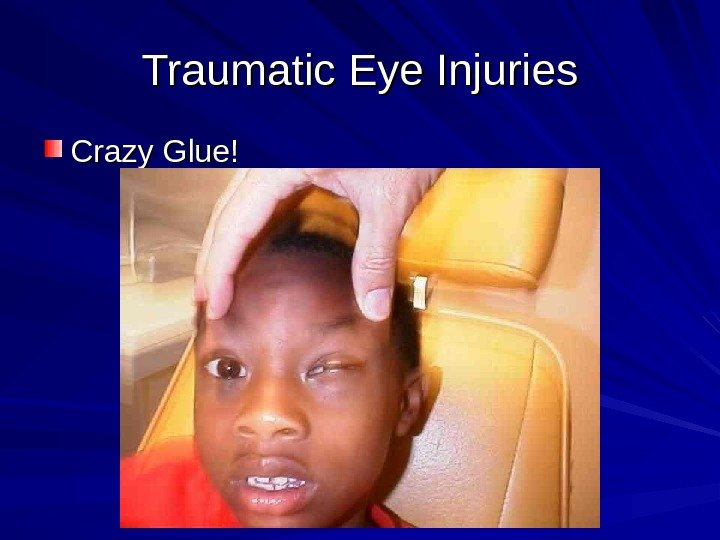 Traumatic Eye Injuries Crazy Glue!