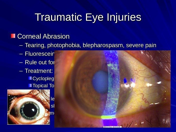 Traumatic Eye Injuries Corneal Abrasion – Tearing, photophobia, blepharospasm, severe pain – Fluorescein: dye