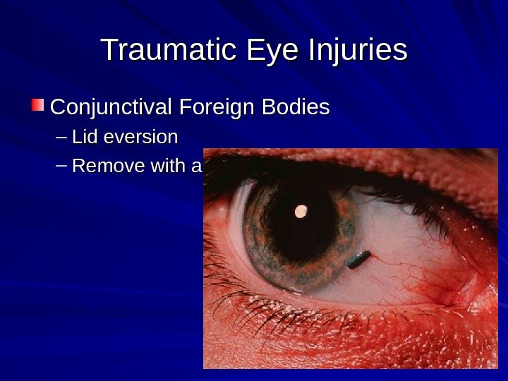 Traumatic Eye Injuries Conjunctival Foreign Bodies – Lid eversion – Remove with a moistened